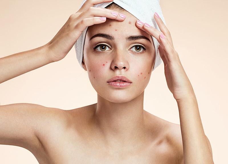 What-You-Need-to-Know-About-Exfoliating-For-Your-Skin-Type-6